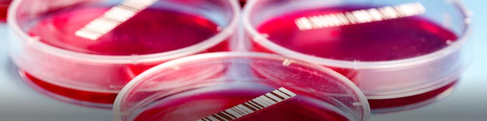 Pathologies Oncologie